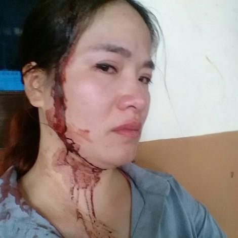 Vụ 'Đến thăm con ở chỗ chồng cũ, mẹ bị đánh đổ máu': Tòa tuyên trao quyền nuôi con cho người mẹ