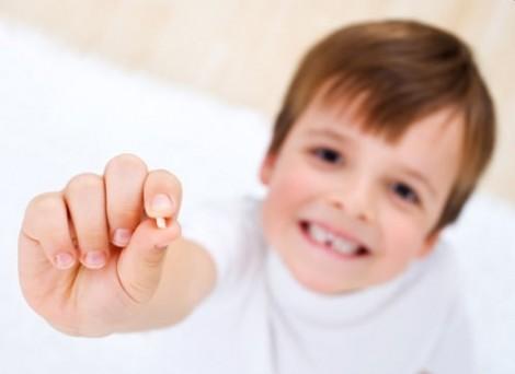 Nhổ răng sữa coi chừng mất răng vĩnh viễn