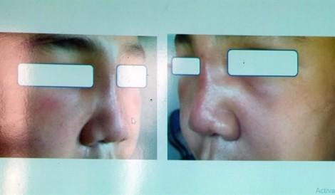 Người phụ nữ trả giá đắt khi bỏ 10 triệu đồng tiêm filler mũi