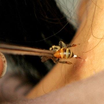 Mot phu nu tu vong sau khi cham cuu bang ong