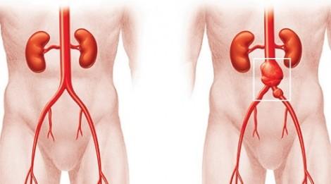 Cẩn thận với bóc tách động mạch chủ ở thai phụ