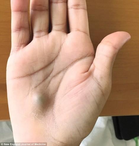 Nổi cục u ở lòng bàn tay, bệnh nhân được chẩn đoán bệnh chết người