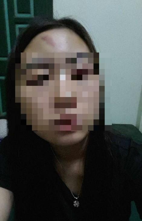 Ở nhà chồng nuôi, bà mẹ 3 con nhỏ phải ráng chịu những trận đòn tím mặt