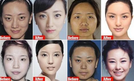 Đế chế phẫu thuật thẩm mỹ khổng lồ biến 'Thị Nở thành Nữ thần' tại Trung Quốc