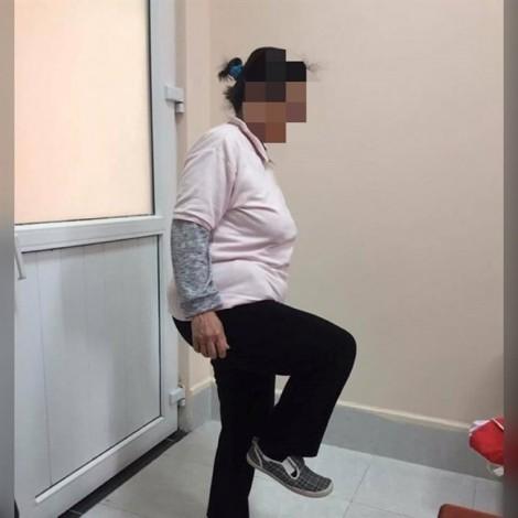 Nữ bệnh nhân ở Hà Nội 20 năm tự uống 'vài chục kg' corticoid để chữa bệnh