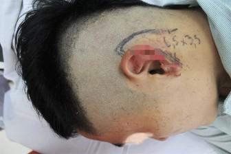 Nam thanh niên Hà Nội đi nhậu với bạn bị cắn đứt tai