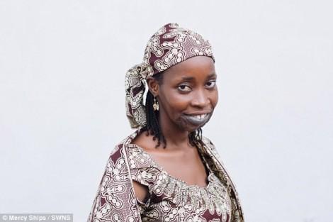 Người mẹ trẻ mỉm cười sau 8 năm gánh khối u dị dạng trên mặt
