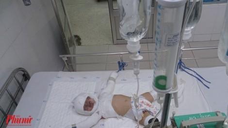 Nổ bình gas trong lúc nấu ăn, hai mẹ con nhập viện