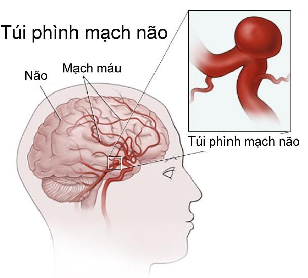 Xot long canh nguoi chong lay thi the vo tinh day sau 4 ngay sinh con