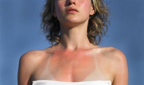 Da cháy nắng và bong tróc du lịch biển mùa hè