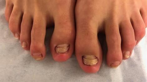 Cá massage chân, một phụ nữ rụng móng chân