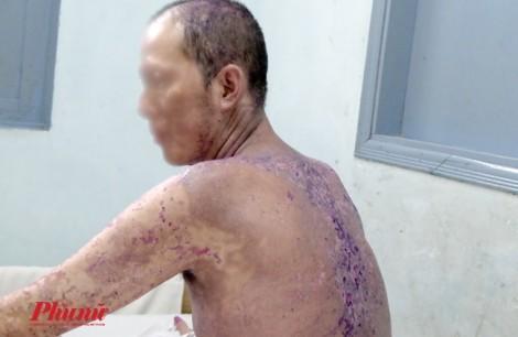 Người đàn ông ở TP.HCM như bị bỏng lửa sau khi uống thuốc