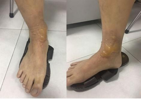 Người đàn ông bỏng nặng sau khi đi mát xa chân