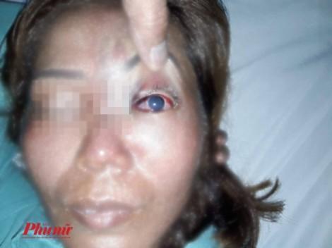 Một phụ nữ có nguy cơ múc bỏ nhãn cầu sau khi tiêm filler nâng mũi