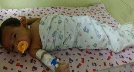 Kim tiêm vắc xin mắc kẹt trong cơ thể bé sơ sinh suốt 19 ngày