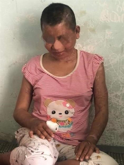 Người phụ nữ tra tấn dã man cô gái 23 tuổi ở Giai Lai có thể đối mặt với án 17 năm tù