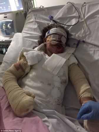Bé gái bỏng 65% cơ thể và mất trí nhớ sau khi uống thuốc giảm đau
