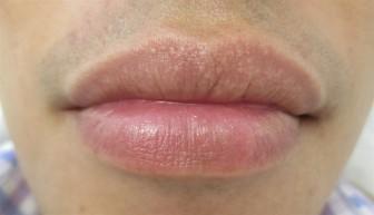 Làm sao loại bỏ hạt bã nhờn fordyce trên môi?