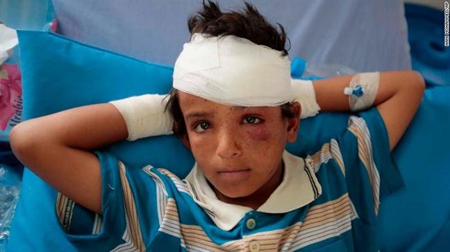 Tham kich khong kich nham tai Yemen: Nhung tieng cuoi cuoi cung truoc khi bom no
