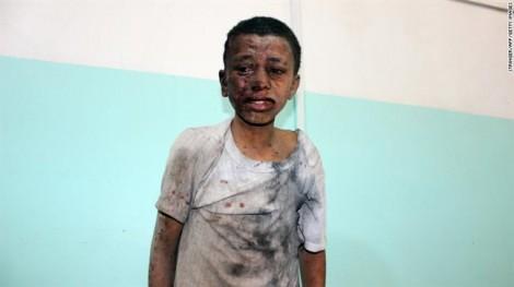 Thảm kịch không kích nhầm tại Yemen: Những tiếng cười cuối cùng trước khi bom nổ