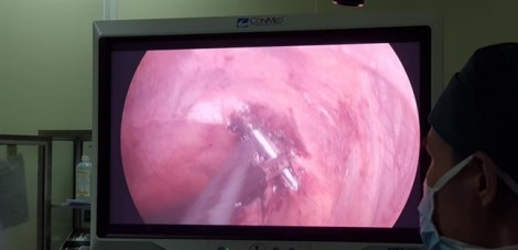 Cây đinh dài 12cm chọc xuyên tủy bệnh nhân do không lấy ra sau mổ