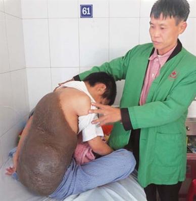Bai cuoi: Chang trai 20 nam mang 'mai rua'