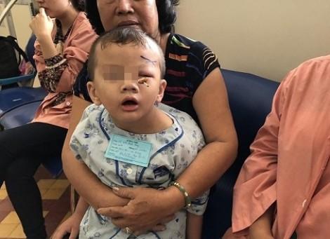 3 ngày, 2 trẻ nhập viện với que xiên thịt cắm vào hốc mắt