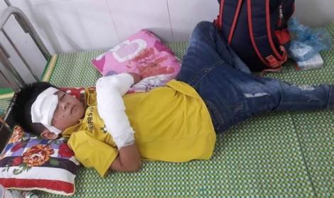 Điện thoại phát nổ lúc sạc pin, bé trai 7 tuổi bị dập nát hai bàn tay