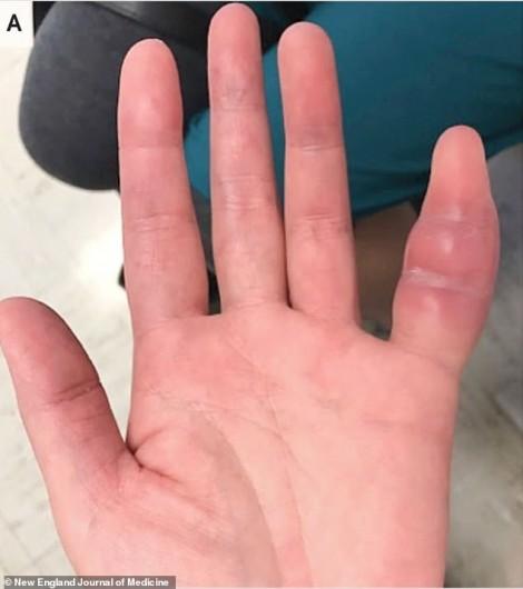 Ngón tay sưng to vì lây bệnh lao nguy hiểm