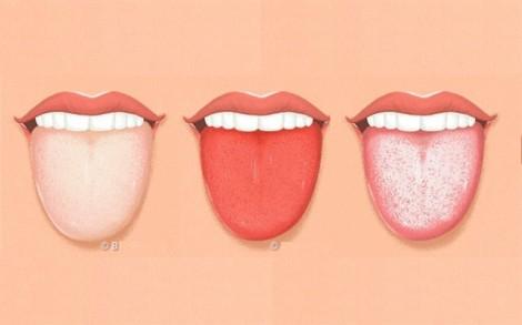 Nhìn lưỡi, biết được tình trạng sức khỏe