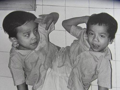 30 nam mo tach cap song sinh Viet - Duc: Niem vui nhu moi ngay hom qua