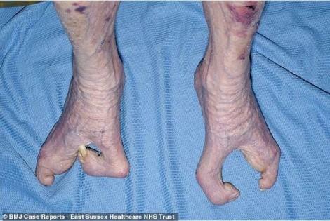 Cụ bà 94 tuổi nuôi con và đan len dù bàn tay chỉ có 3 ngón