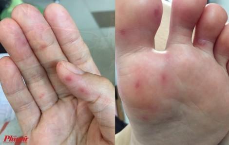 Người lớn bị tay chân miệng có phải nhập viện?