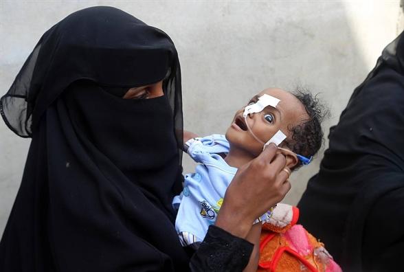 Nghich ly thoi dai qua hinh anh em be Yemen