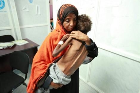 Nghịch lý thời đại qua hình ảnh em bé Yemen