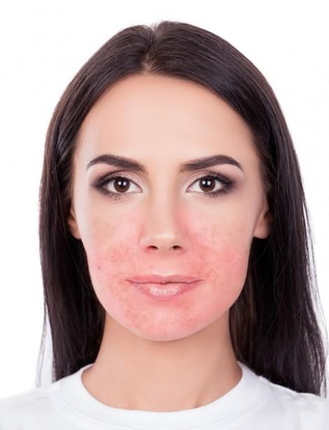 Tổn thương da mặt nghiêm trọng với 9 thứ tưởng an toàn