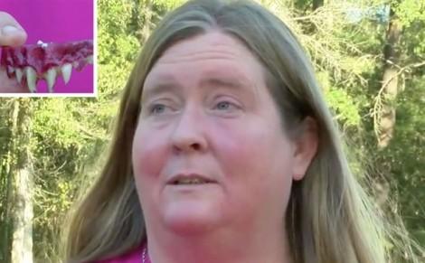 Hóa trang Halloween, người phụ nữ bị kẹt răng giả trong miệng 2 ngày