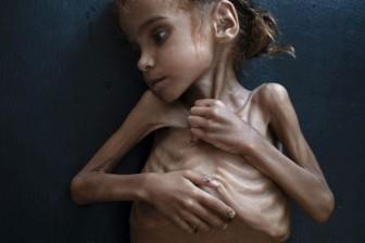 Bé gái Yemen khiến cả thế giới phải bàng hoàng vì nạn đói