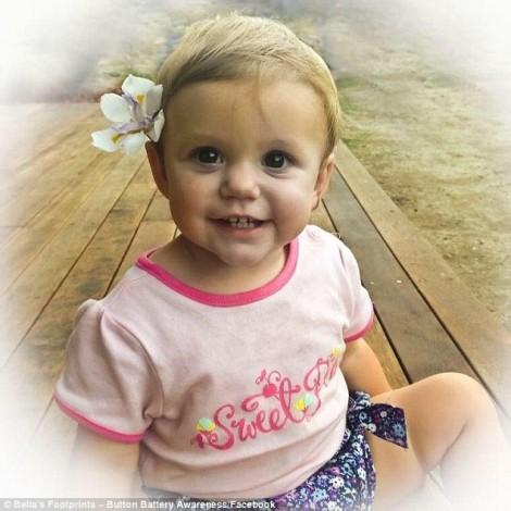 Bé gái qua đời vì bác sĩ khẳng định viên pin sẽ tự ra ngoài theo đường tự nhiên