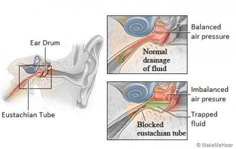 Vì sao viêm tai giữa do bệnh sởi gây ra?