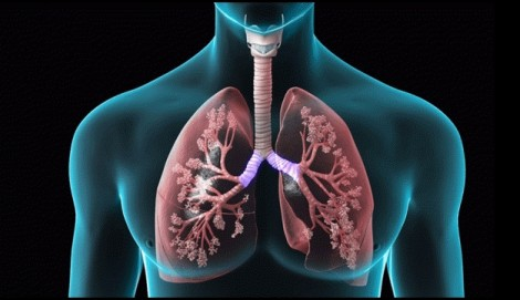 Béo phì có liên quan đến bệnh COPD ở người không hút thuốc