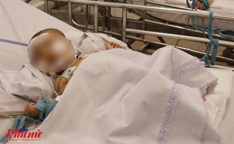 Mẹ tử vong, con phỏng nặng vì cắm điện quạt máy