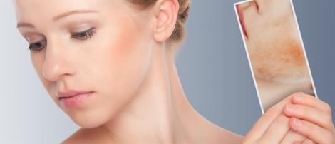 Loại bỏ vùng da sạm, đốm nâu với nguyên liệu tự nhiên vô cùng quen thuộc