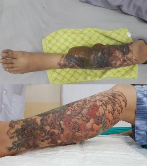 Bệnh nhân phỏng nặng sau khi thẩm mỹ viện xóa xăm bằng laser