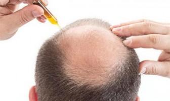Da đầu tróc lở vì dùng thảo dược trị rụng tóc