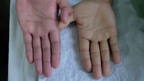 7 dấu hiệu thiếu máu thường gặp