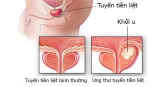 Viêm ruột có liên quan đến ung thư tuyến tiền liệt