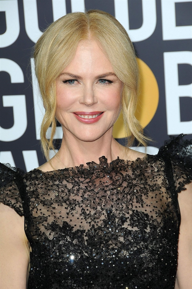 Nhung bi mat khien Nicole Kidman giu mai ve dep tu nhien