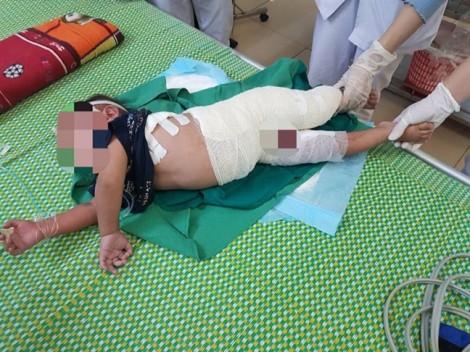 Bé trai 2 tuổi bỏng nặng do té vào nồi luộc măng đang sôi