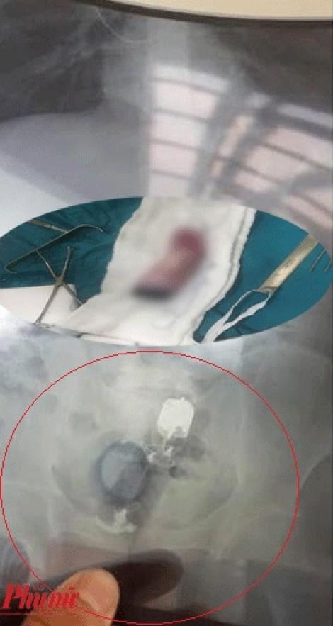 Lấy dương vật giả lọt vào bụng bệnh nhân ở Biên Hòa lúc 3 giờ sáng